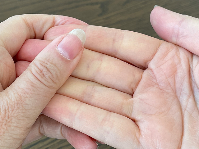 10 ways to improve circulation in your hands