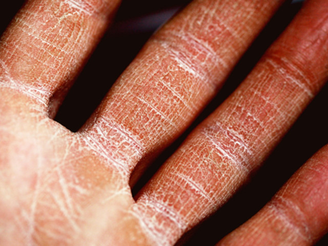 7 Common Skin Disorders and Their Treatment