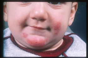 How to manage and prevent your child's eczema flares