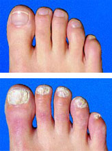 Stop fungal nail infection in its tracks this summer