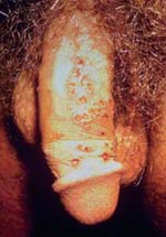 Genital Herpes (herpes simplex 2) - An Overview