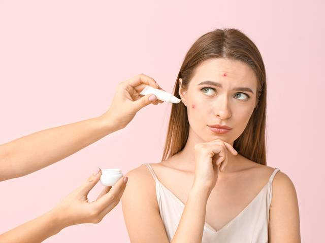 10 Things You Should Do To Avoid Face Acne