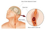Blood Clots and Stroke Fourth Indicator