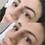 Brows Tips To Make You Look Younger